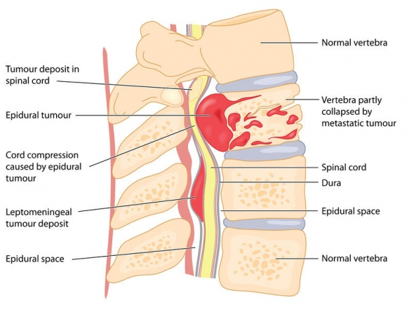 spinal tumour