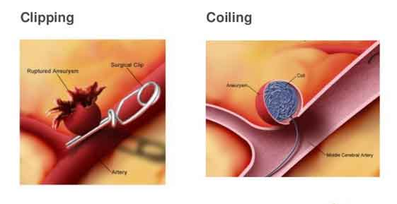 Aneurysm-Clip-Coiling